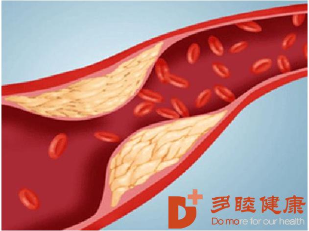干细胞治疗:导致心血管疾病的几大病因?