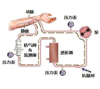 日本干细胞治疗|尿毒症治疗3+1种方法