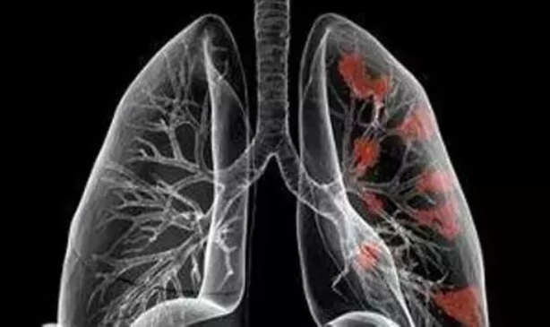 为什么日本可以查出早期肺癌,国内却不行?
