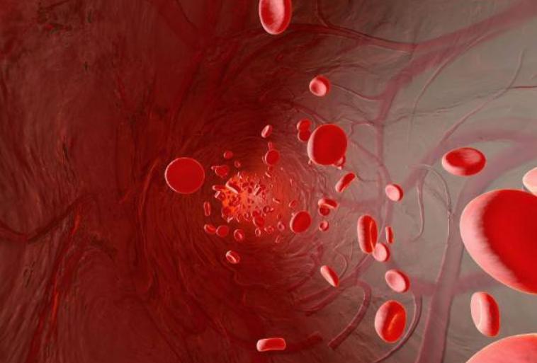 辟谣篇:血液净化等同于血液透析?