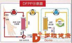 多睦健康 日本DFPP血液净化,清理你的血管