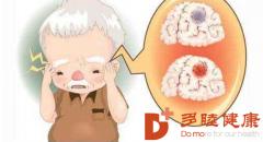 多睦健康 分析脑梗塞的常见原因和症状