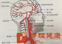 多睦健康 脖子竟和心血管疾病有重大关联?!
