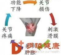 多睦健康|滑膜炎和关节炎到底是怎样错综复杂的关系?