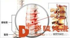 多睦健康 强直性脊柱炎的症状