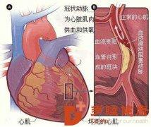 榊原医院 身体这2个部位发硬,小心是脑梗