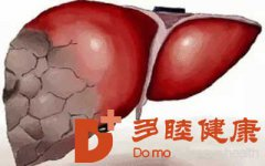 干细胞治疗|这种方式有效治疗肝硬化