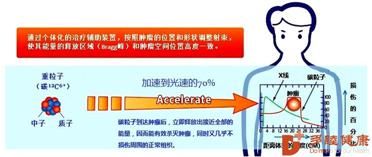 癌研有明 质子重离子的核心技术