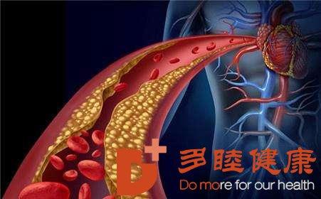 血液净化|高血脂非胖人专属 高血脂的九大误区