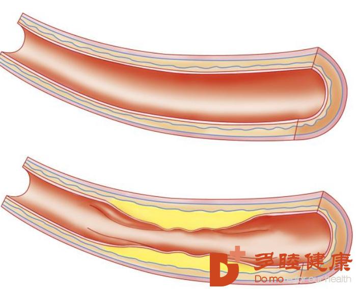 榊原医院|动脉硬化的发病原因有哪些?