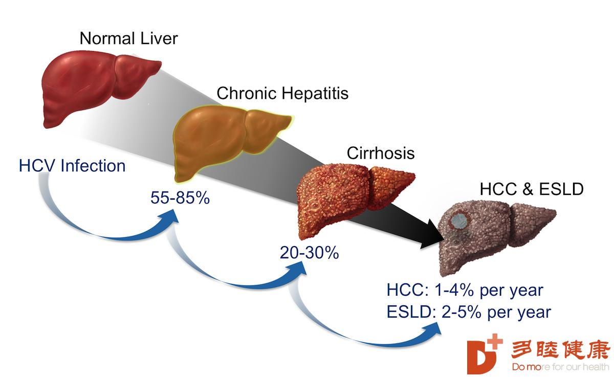癌研有明|肝细胞癌细胞基因免疫治疗