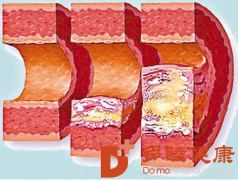 榊原医院|你知道动脉硬化和动脉粥样硬化的不同之处吗