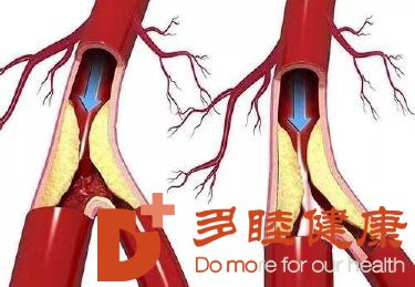 榊原医院|心脑血管疾病的发病原因是什么?