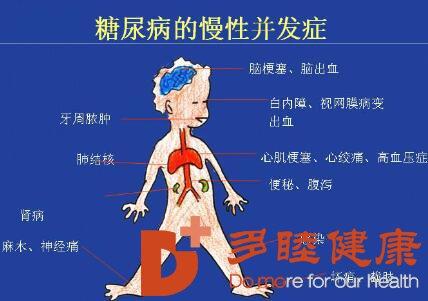 干细胞治疗|并发症--糖尿病最可怕的危害
