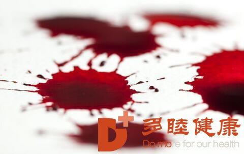 日本干细胞|肝硬化出血原因大揭秘