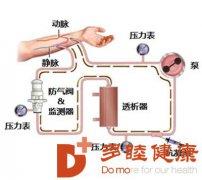 日本干细胞治疗 尿毒症治疗3+1种方法