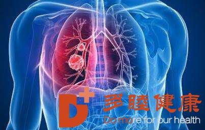 癌研有明|肺癌有哪些症状呢?