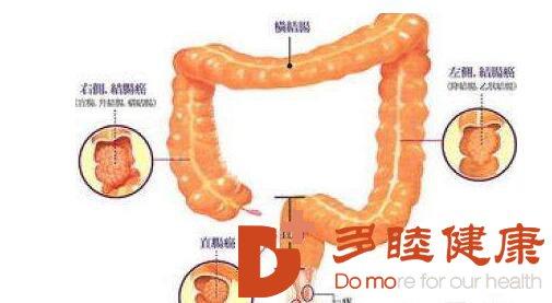 癌研有明|得了结肠癌如何再次确诊?