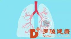 癌研有明|肺癌检查一定要做磁共振吗?