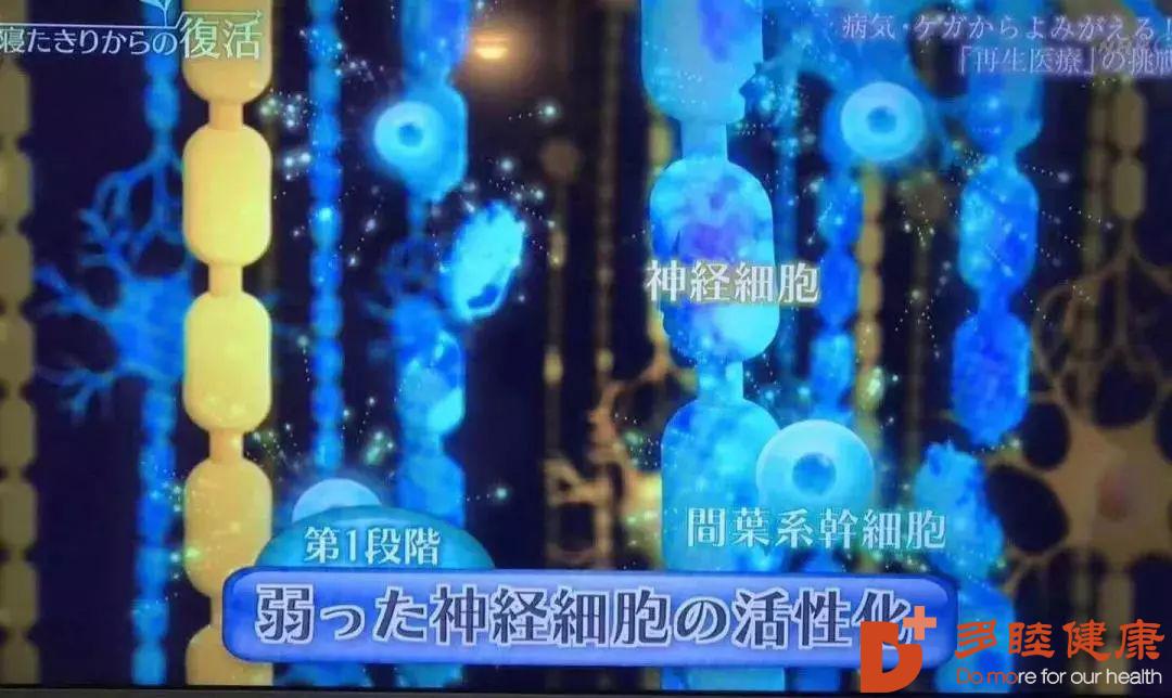 希望 | 偏瘫、失语?日本干细胞逆转脑中风后遗症