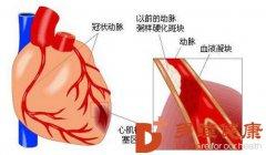 榊原医院-心梗救治 从注意这些小症状开始!
