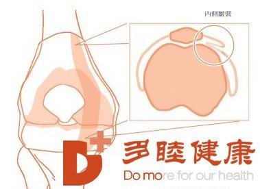 日本干细胞-避免50岁后常见的退化性关节炎!