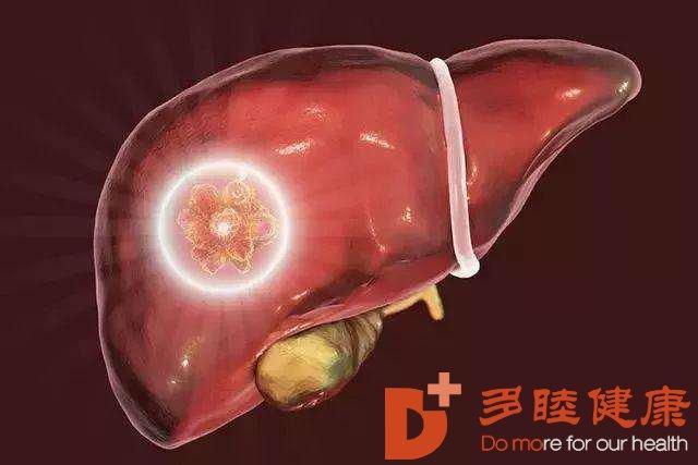 癌研有明-肝癌癌块的大小 肝癌的大小有何区分
