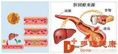 血液净化-听说胆固醇取消限量,可以放开吃了吧?