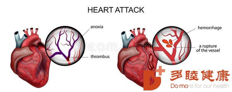 榊原医院-老年人牙疼警惕是心肌梗塞的前兆