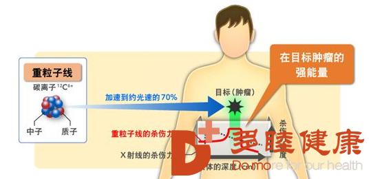 癌症治疗:为什么选择日本质子重离子治疗