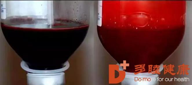 预防和治疗疾病的最先进方案——血液净化