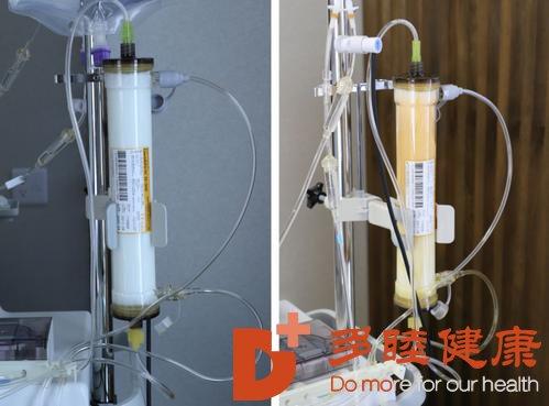 日本先端DFPP疗法体验记:血液净化,不是病人一样有必要做
