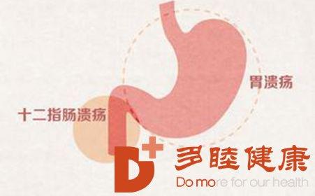 癌研有明-胃溃疡与胃癌哪个会先病发?