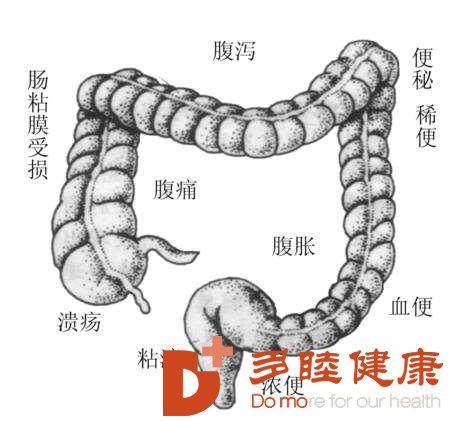 肠癌治疗;可以从排便看出得了慢性肠炎?多睦来告诉你真相