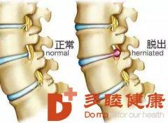 干细胞治疗在骨科领域的应用(五)椎间盘修复