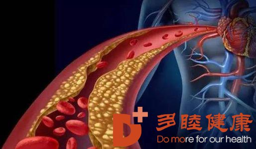 高密度脂蛋白 HDL - 血脂检测指标