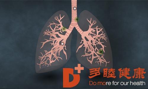 日本看病:选对治疗方案,这些肺癌能治愈