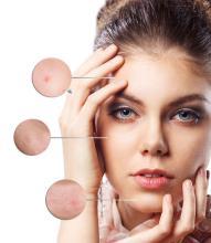 干细胞抗衰老:做对6件事可延缓女人衰老