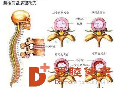日本干细胞:想摆脱腰肌劳损?做到这4件事,慢慢得到改善