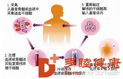 癌症治疗:硫氧还蛋白抗氧化剂可能很快用于改善癌症治疗