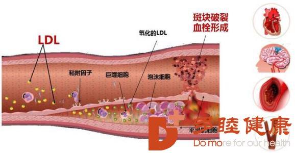 日本血液净化:肥胖与动脉硬化的关系