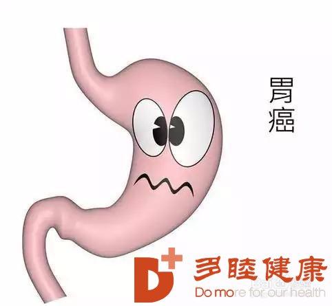日本胃癌治疗:遗传性弥漫型胃癌