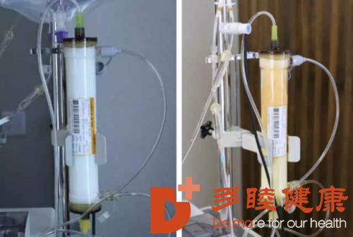 多睦健康:赴日血液净化能够彻底把病治好吗