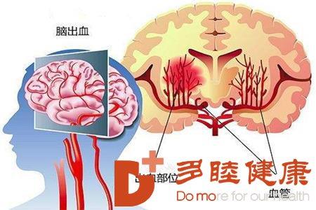 血液净化:高血压脑出血内镜治疗效果好吗?