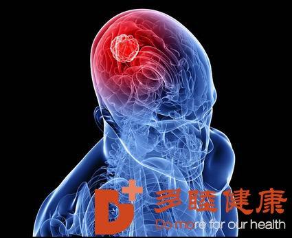日本脑癌治疗:你了解脑癌吗?