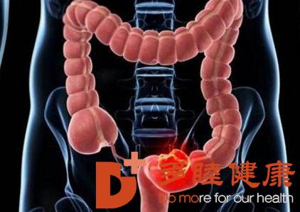 日本直肠癌治疗:直肠癌出现的四个早期症状