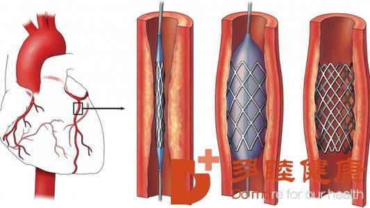 日本医疗:心脏搭桥、心脏支架有哪些优点和缺点?