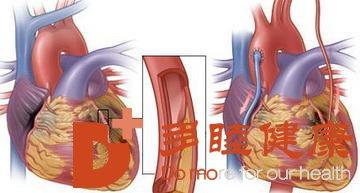 日本看病:心脏搭桥和支架的区别主要有哪些?