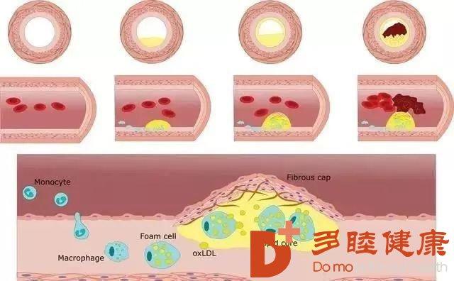 血液净化:血管斑块导致的原因是什么?哪些人群容易患病?