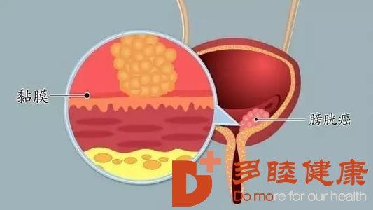 日本干细胞:糖尿病与膀胱癌发病关系